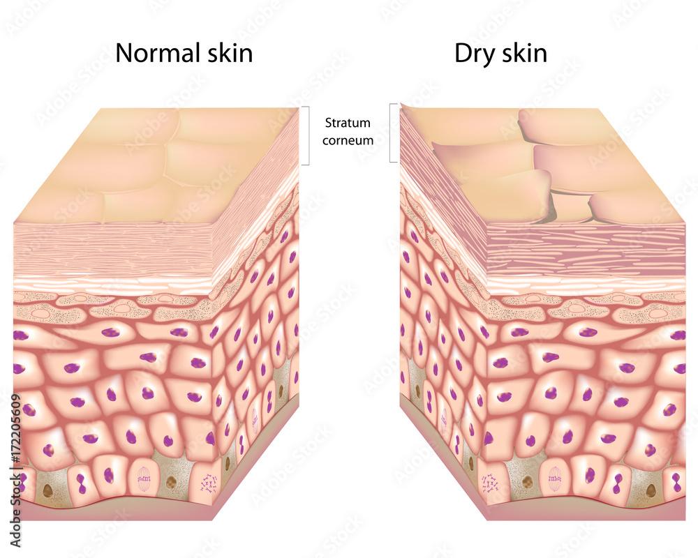 Fototapety, obrazy: 3D anatomy of dry skin