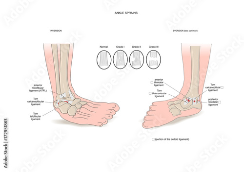 Two common types of ankle sprain (inversion and eversion) Canvas Print
