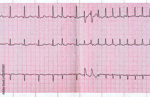 ECG with supraventricular extrasystole and short paroxysm of atrial fibrillation Wallpaper Mural