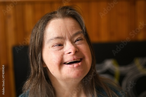 Fototapeta portrait of young adult woman with down syndrome obraz