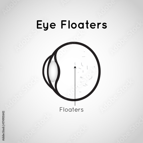 Fotografia, Obraz  Eye Floaters logo vector icon design illustration