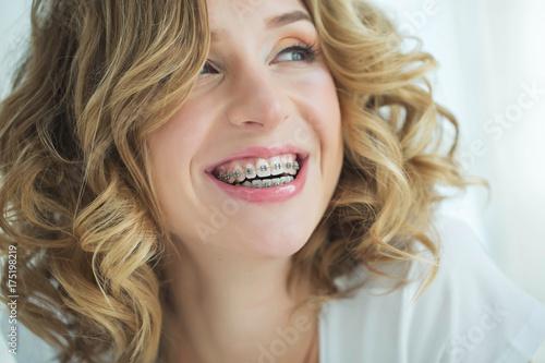 Fotografia  Woman in braces