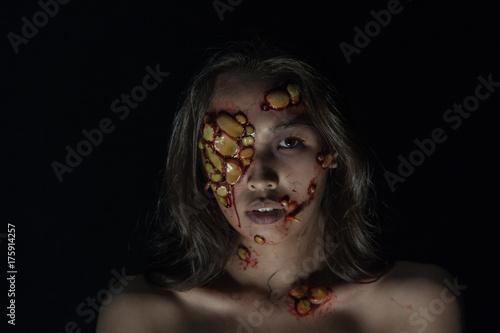 Fényképezés  Girl with sores and blood on their face
