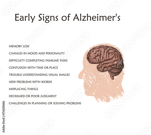 How many people develop dementia in their 30s? - Alzheimer ...