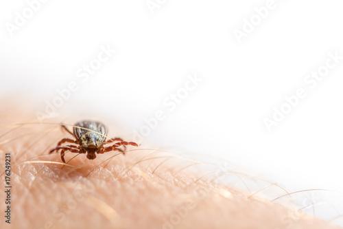 Zecken als gefährlicher Krankheitsüberträger