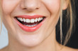 Detail on a gorgeous smile of a beautiful happy blonde woman. Her lips are painted with bright red lipstick, skin is soft and natural and do not miss her stunning white teeth.
