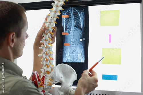 Scoliosis - Specialist with  model  of spine watching image of chest  at x-ray film viewer, Canvas Print