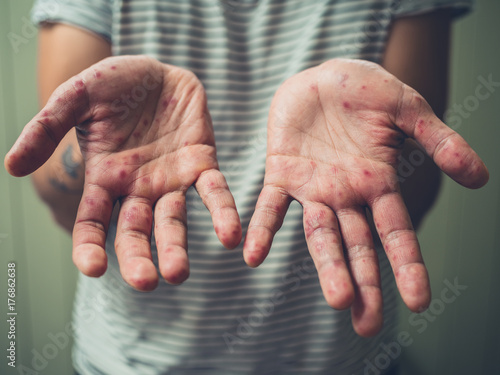 Fotografia  Young man with hand foot and mouth disease