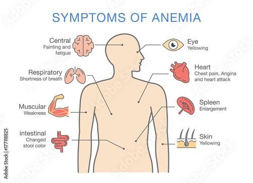 Photo Symptoms common to many types of Anemia