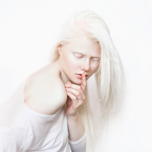 Albino Girl With White Skin, Natural Lips And White Hair. Photo Face On A Light Background. Portrait Of The Head. Blonde Girl