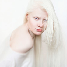 Albino Girl With White Skin, N...