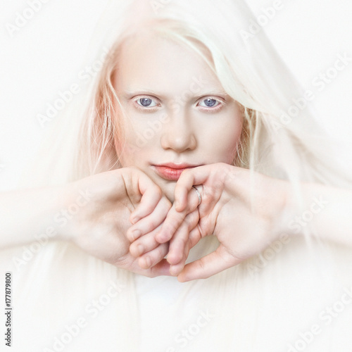 Albino girl with white skin, natural lips and white hair Wallpaper Mural
