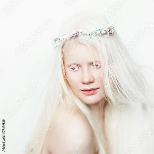 Obraz na plátně  Albino girl with white skin, natural lips and white hair