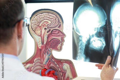 Photo  Medical professional comparing  x-ray images of skull  with functional model