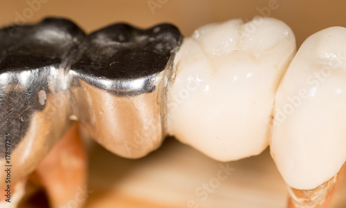 metal tooth. macro Canvas Print