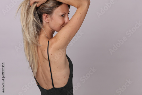 Checking benign moles : Portrait of Beautiful Woman with birthmarks on her back and face. Laser skin tags removal