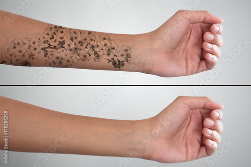 Woman's Hand Before And After Laser Tattoo Removal Fototapete