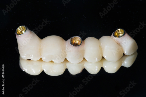 Photo  ceramic teeth on the mirror under the abutments