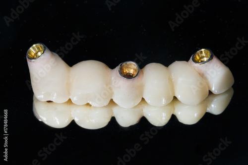 Valokuva  ceramic teeth on the mirror under the abutments