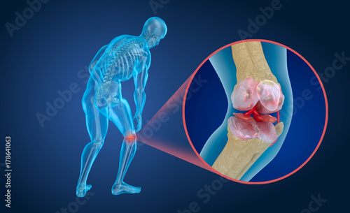 Photo Osteoporosis of the knee joint,  Medically accurate 3D illustration