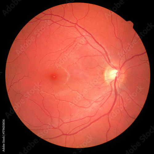 Fotografía  left eye's retinal image with macula, vessels and optic disc isolated view on a