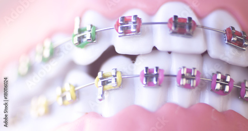 Fotografia  Cosmetic dental metal brackets