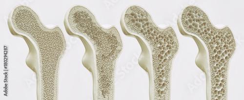 Fotografiet  4 Stadien der Osteoporose