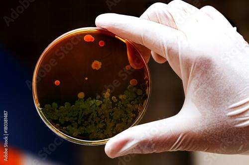 Photo laboratuvarda yetiştirilmiş bakteriler