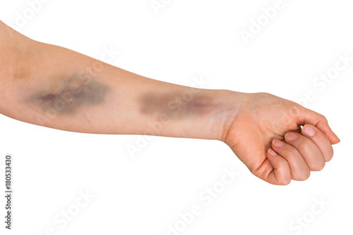 Foto Large bruise on human arm