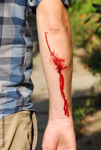 Photo Blessure sanglante du bras