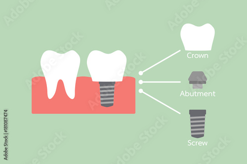 structure of the dental implant with all parts disassembled, crown, abutment, sc Wallpaper Mural