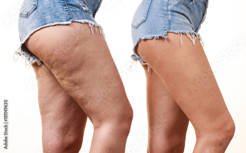 Fototapeta Comparison of legs with and without cellulite