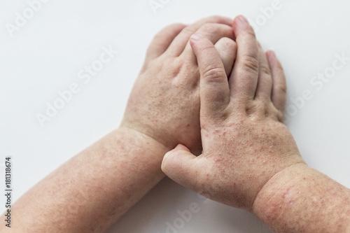 Obraz Scarlet fever. Two children's hands with rash on white background. - fototapety do salonu