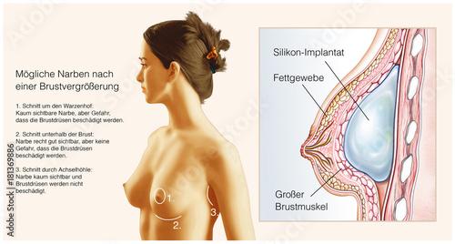Mögliche Narben nach Brustvergrößerung Canvas Print