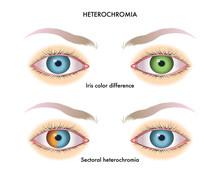 Vector Medical Illustration Of The Symptoms Of Heterochromia