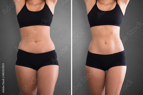 Obraz Woman Before And After Weight Loss - fototapety do salonu