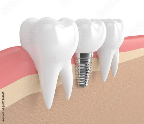 Photo 3d render of teeth with dental implant in gums