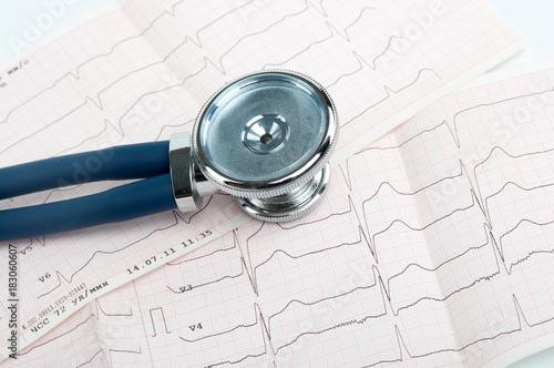 Photo Stethoscope on cardiogram
