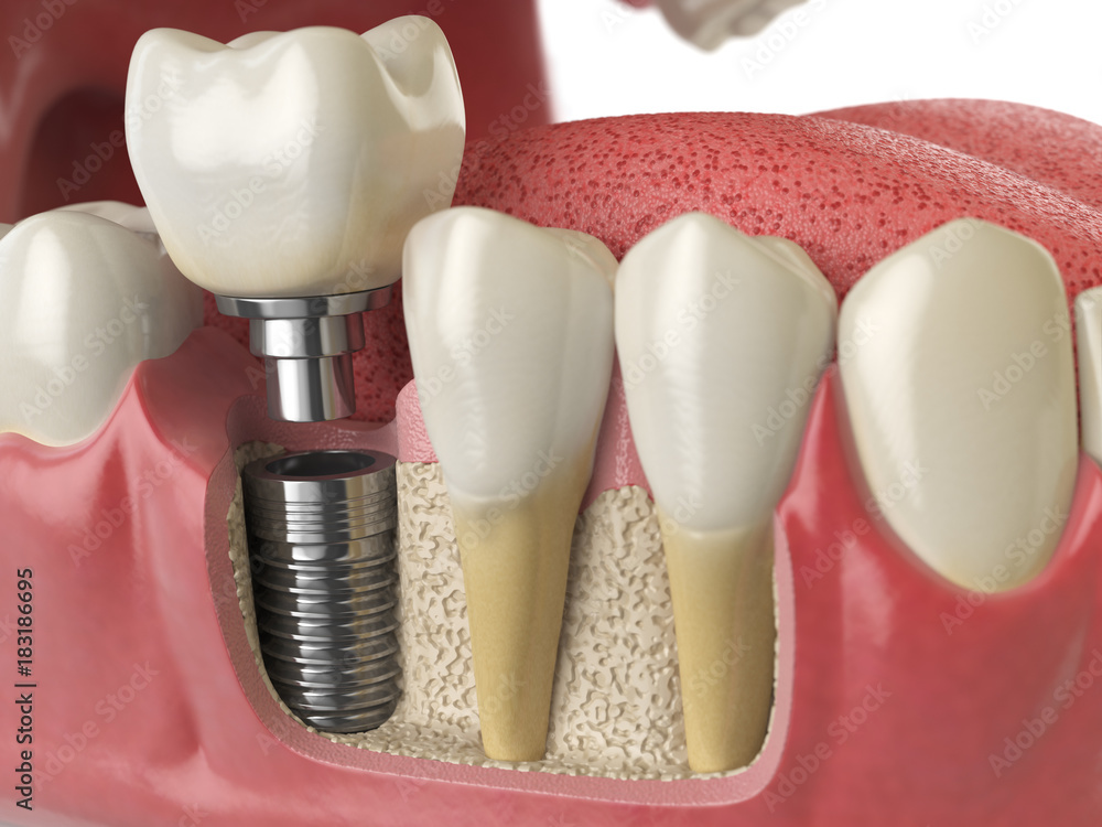 Anatomy Of Healthy Teeth And Tooth Dental Implant In Human Denturra