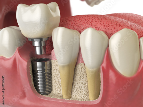 Obraz na plátně  Anatomy of healthy teeth and tooth dental implant in human denturra