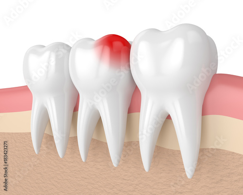 3d render of teeth with toothache in gums #183423271