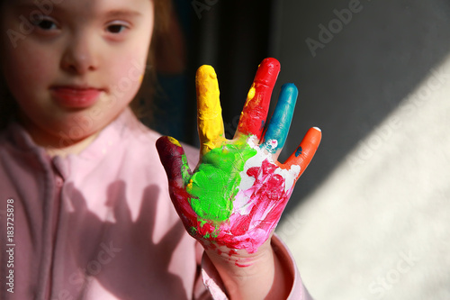 Fotografía  Down syndrome girl with painted hands