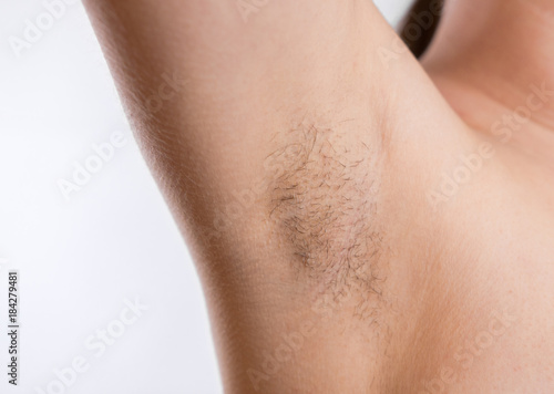 Woman with armpit hair, female hairy armpit, Canvas Print