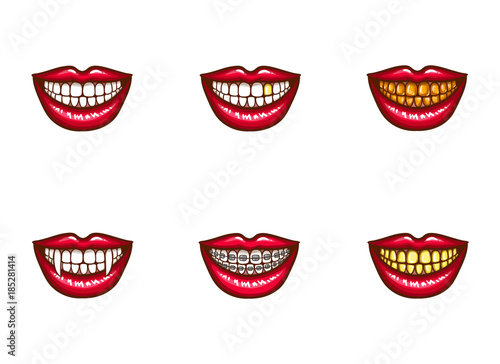 Set Of Vector Red Female Lips With White Healthy Teeth And Perfect