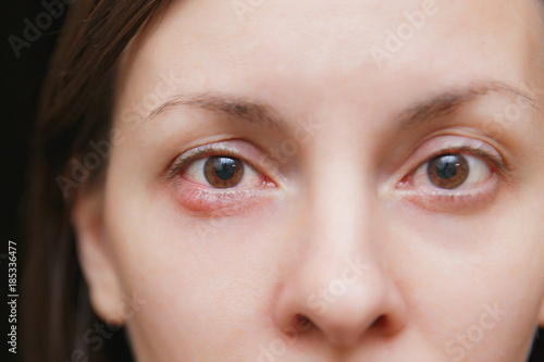Close up photo of young caucasian brunette woman barley brown eye infection, eyelid abscess, stye, hordeolum Wallpaper Mural