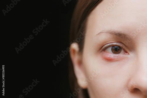 Close up of young caucasian brunette woman barley brown one eye infection, eyelid abscess, stye, hordeolum Wallpaper Mural