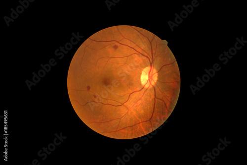 Fotografía  Photo Madical Retina Abnormal isolated on black background