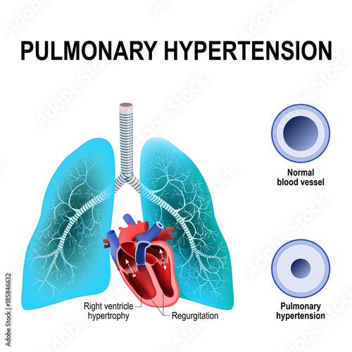 hipertensiune pulmonara ciroza hepatică