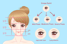 Woman With Droopy Eyelids