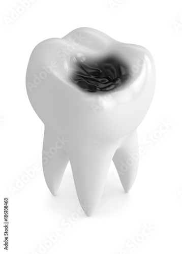 3d render of tooth with decay Wallpaper Mural